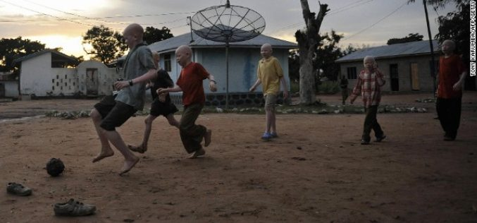 Albino activist fights witchcraft killings