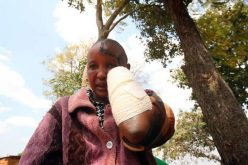 Kenya: Husband hacks off wife's hands after saying she failed to have children
